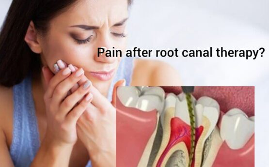 PAIN AFTER ROOT CANAL TREATMENT